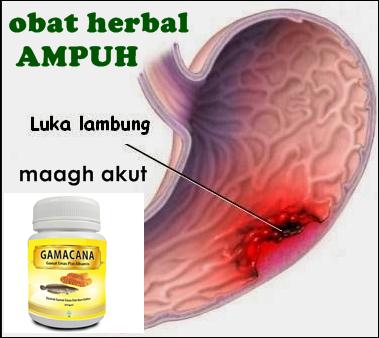 Foto: Obat Herbal Luka Lambung Ampuh